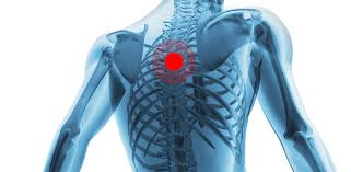 The back anatomy includes the latissimus dorsi, trapezius, erector spinae, rhomboid, and the teres major. Blog Causes Of Upper Back Pain