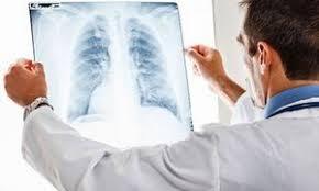 Какой кашель при воспалении легких у детей Пневмония у детей  Вместе с тем пневмония обычно бывает вторичной то есть развивается как осложнение после другого перенесенного заболевания Чаще всего причиной развития