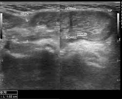testicular hernia ultrasound. ultrasound. inguinal and umbilical hernia testicular ultrasound l