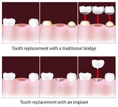 Dental Bridges - Missouri City, TX and Richmond, TX - Sugar Land, TX