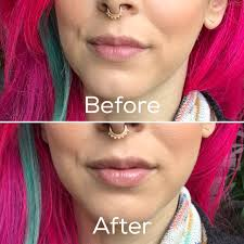 juvalips natural lip plumper does it work