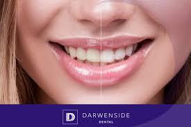 Teeth Setting Setting The Record Straight Teeth Whitening Darwen Dental