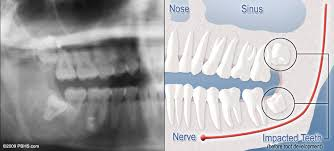 It also provides details about dental insurance coverage for oral surgery. How Much Does Wisdom Teeth Removal Cost Without Insurance Teethwalls