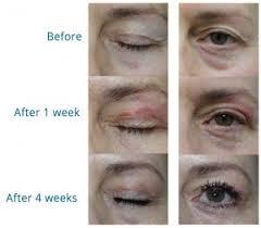 Purebeau fibroblast lifting « nouvelle cosmétique