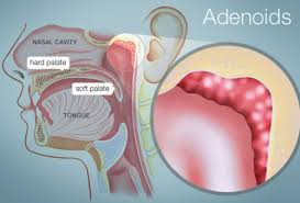 Adenoids Human Anatomy Picture Function Location More