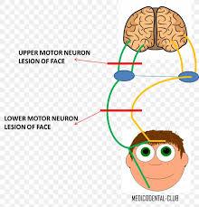 lower motor neuron lesion nerve