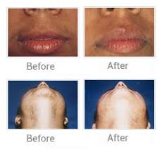 laser hair removal acne treatments