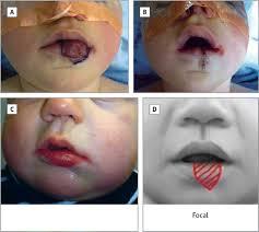 lip infantile hemangiomas