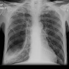 Loculated Pneumothorax Radiology Case Radiopaedia Org