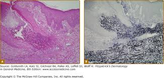 section 9 disorders of the dermal connective tissue fitzpatrick s image not available