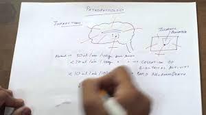 Pathophysiology Of Stroke Youtube
