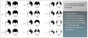 Male Pattern Baldness Causes Cool Alopecia In Men DHT Men Causes Of Hair Loss In Men Male Baldness
