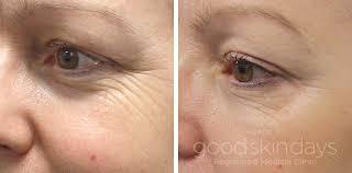 Botox, under, eye, wrinkles