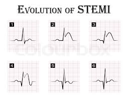 Ecg Of Evolution Step By Step Of Stock Vector Colourbox