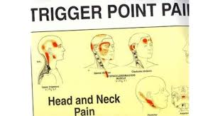Trigger Point Pain Patterns Wall Charts By Janet Travell