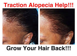 give traction alopecia hair loss