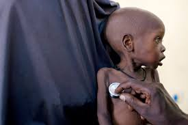 photo essay children who escaped boko haram live in shadow of malnutrition ia d villasana 10