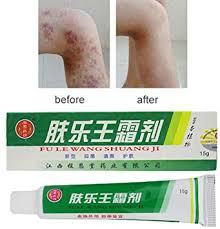 Amazon.com: High Quality Chinese Herbal, Eczema Psoriasis Creams ...