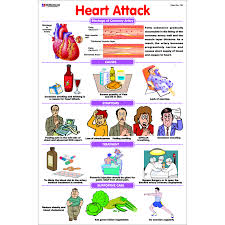 Heart Attack Chart Chart No 133 Heart Attack