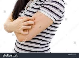 Health Problem Skin Diseases Young Woman Stock Photo (Edit Now ...