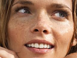 Best Lasers For Wrinkles Redness Texture More Goop
