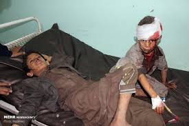 Image result for قتلعام کودکان مظلوم یمن اشک نماینده سازمان ملل را درآورد