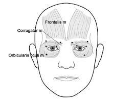 blepharospasm botox