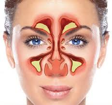 Image result for Sinus Doctors