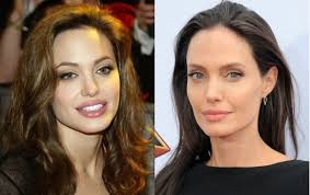 Before After Facelift Angelina Jolie And