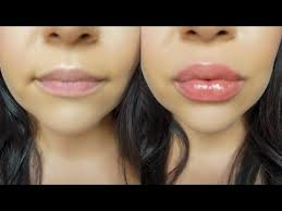 huge lips without injections