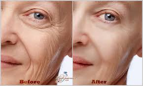 wrinkle remove