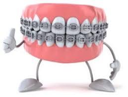 Braces Route 32 Pediatric Dentistry Orthodontics