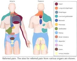 Pain Referral Patterns Delectable Referred Pain When It Hurt Where The Problem Actually Is Visceral