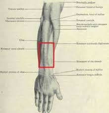 A tendon is the fibrous tissue that attaches muscle to bone in the human body. Pain Tightness In Forearm Tendonitis