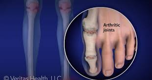 ra foot pain relief