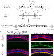 transgenic tmc2 expression preserves inner ear hair cells and vestibular function in mice lacking tmc1 scientific reports