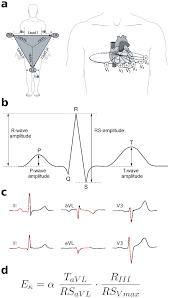 Illustration of ECG waves and values. (a) Illustration of standard ECG...