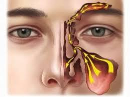 sinusitis ile ilgili görsel sonucu