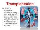 transplantation