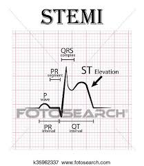 Clip Art Of Ecg Of St Elevation Myocardial Infarction Stemi And
