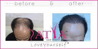 synthetic hair transplant 1300 biofibre