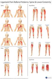 Pain Referral Patterns Mesmerizing Shoulder Pain Referral Patterns Are Reported In This Study