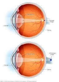 Presbyopia Symptoms And Causes Mayo Clinic
