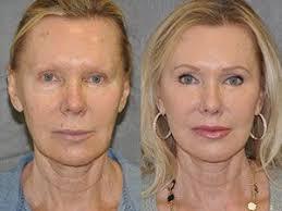 Lip Lift upper Lip, shortening Sydney, lip Lift, surgery