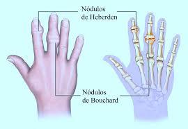Dor nas juntas dos dedos das mãos