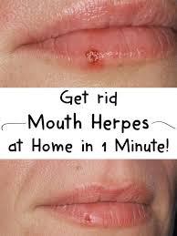 herpes in mouth symptoms zipper
