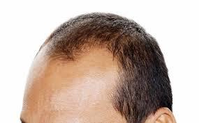 夏のペタリ髪にも効果 薄毛タイプ別マッサージ術 2017年6月24日