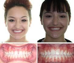 corbridge orthodontics