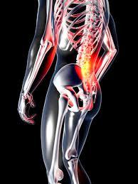 Was bedeutet osteochondrose