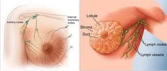 มะเร็งเต้านม - ความรู้เกี่ยวกับโรคมะเร็ง ::โรงพยาบาลรักษามะเร็ง เฉพาะทางฟูด้ากว่างโจว::